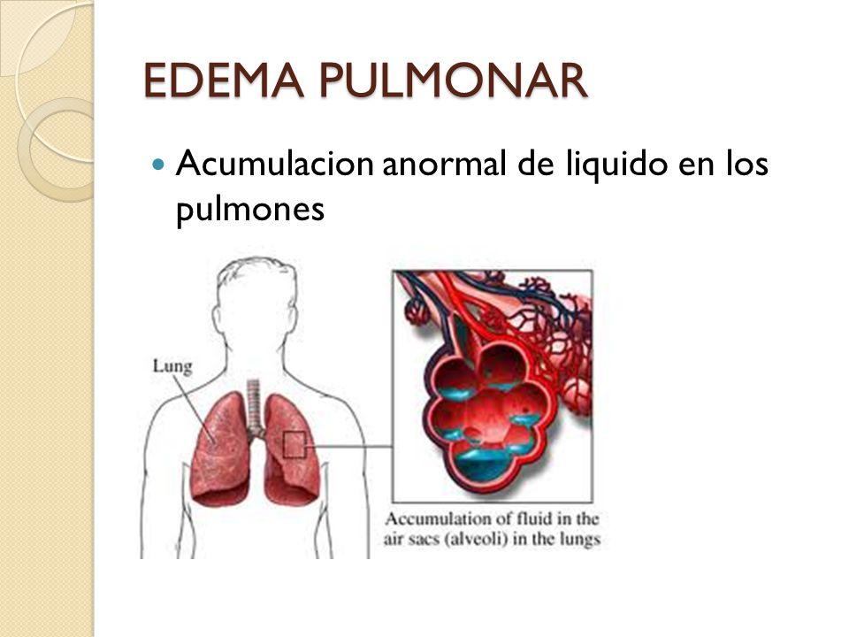 EDEMA PULMONAR Acumulacion anormal de liquido en los pulmones