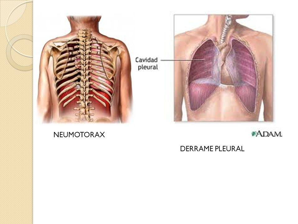 NEUMOTORAX DERRAME PLEURAL
