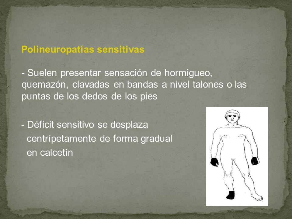 Polineuropatías sensitivas - Suelen presentar sensación de hormigueo, quemazón, clavadas en bandas a nivel talones o las puntas de los dedos de los pies