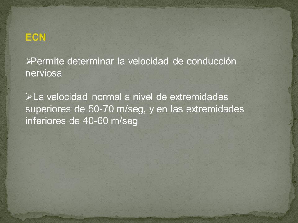 ECN Permite determinar la velocidad de conducción nerviosa.