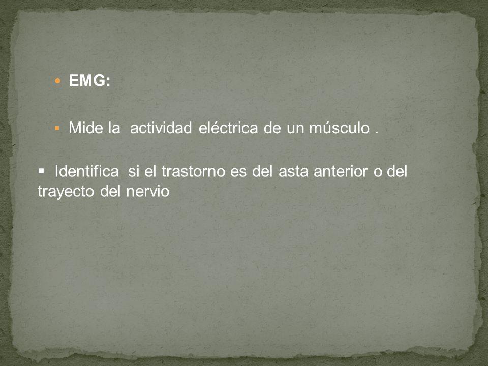 EMG: Mide la actividad eléctrica de un músculo .