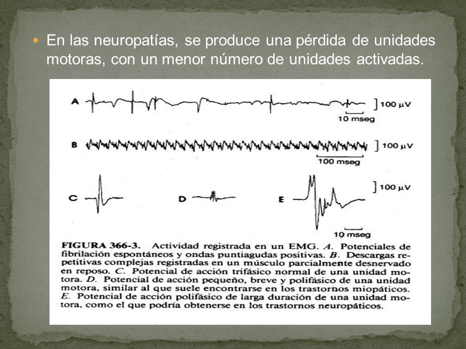 En las neuropatías, se produce una pérdida de unidades motoras, con un menor número de unidades activadas.