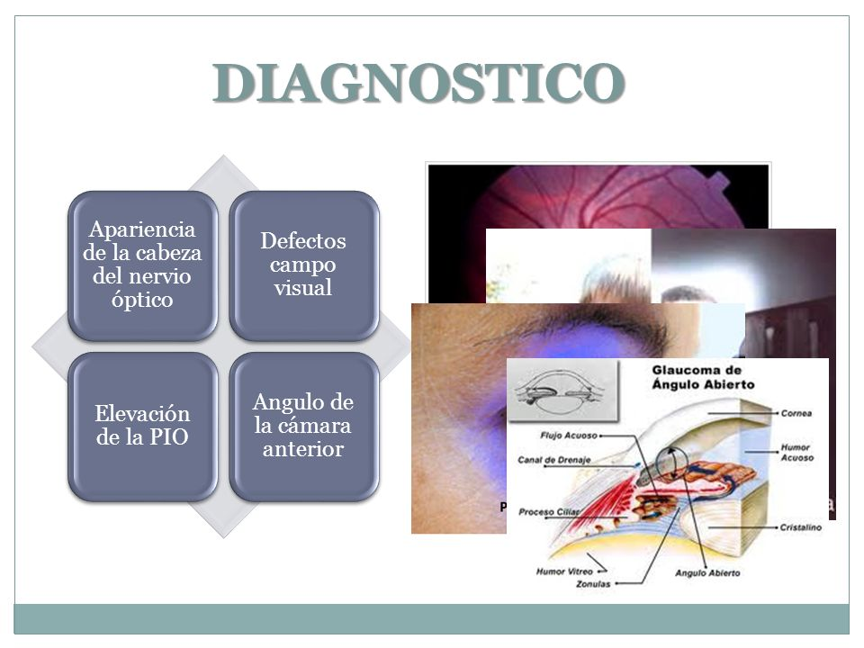 DIAGNOSTICO Apariencia de la cabeza del nervio óptico