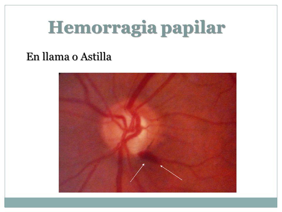 Hemorragia papilar En llama o Astilla