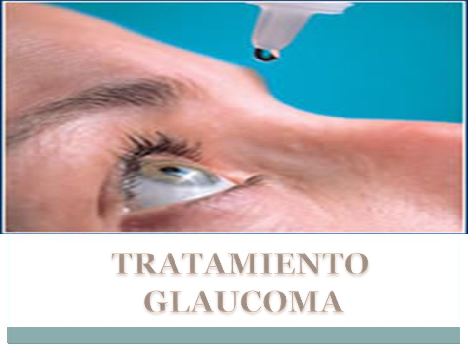 TRATAMIENTO GLAUCOMA