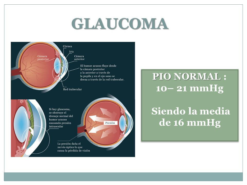 GLAUCOMA PIO NORMAL : 10– 21 mmHg Siendo la media de 16 mmHg