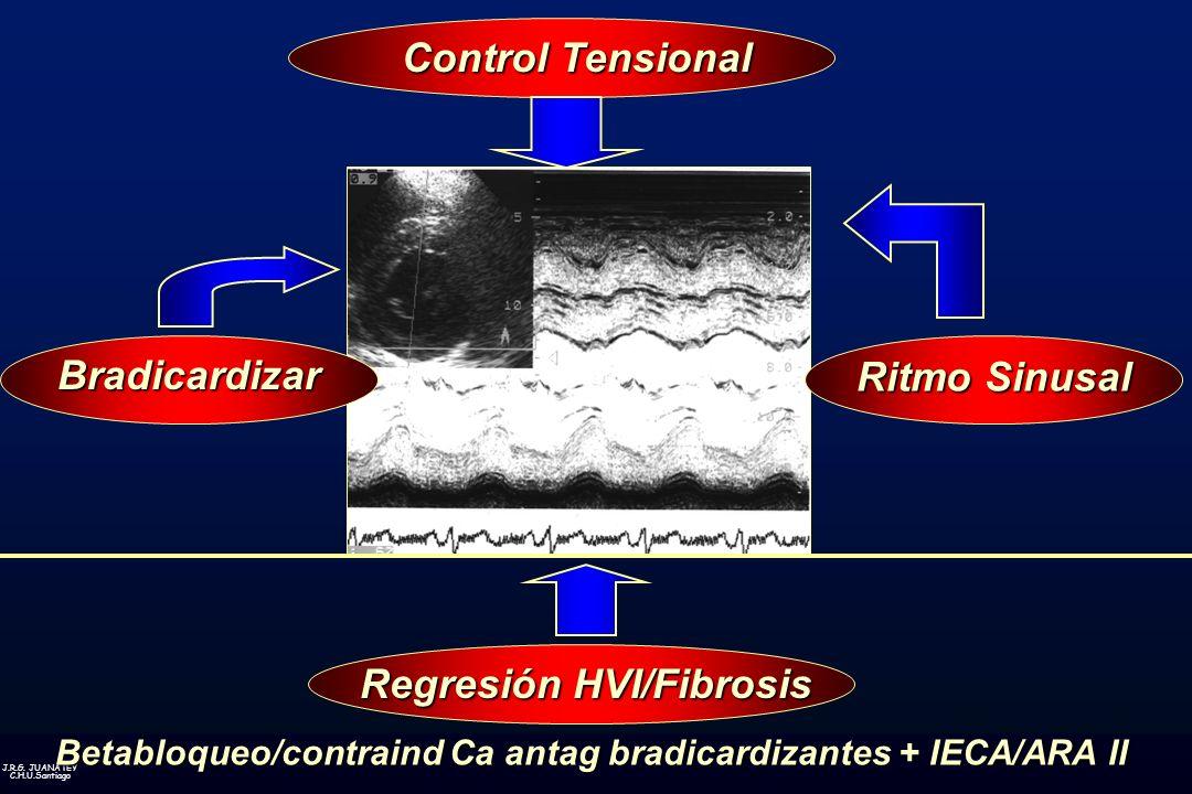 Control Tensional Bradicardizar Ritmo Sinusal Regresión HVI/Fibrosis