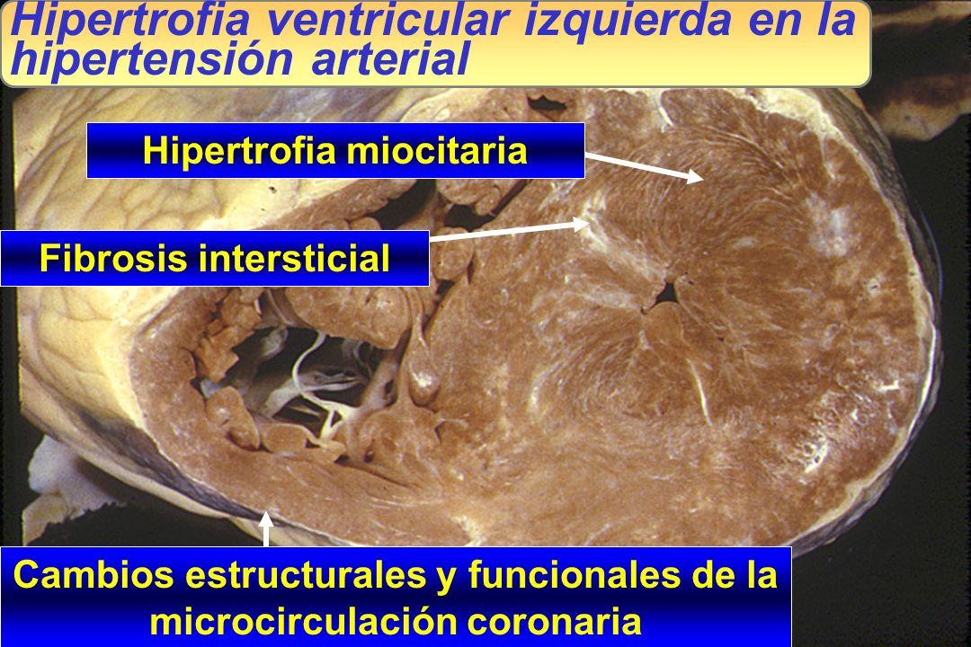 Hipertrofia ventricular izquierda en la hipertensión arterial
