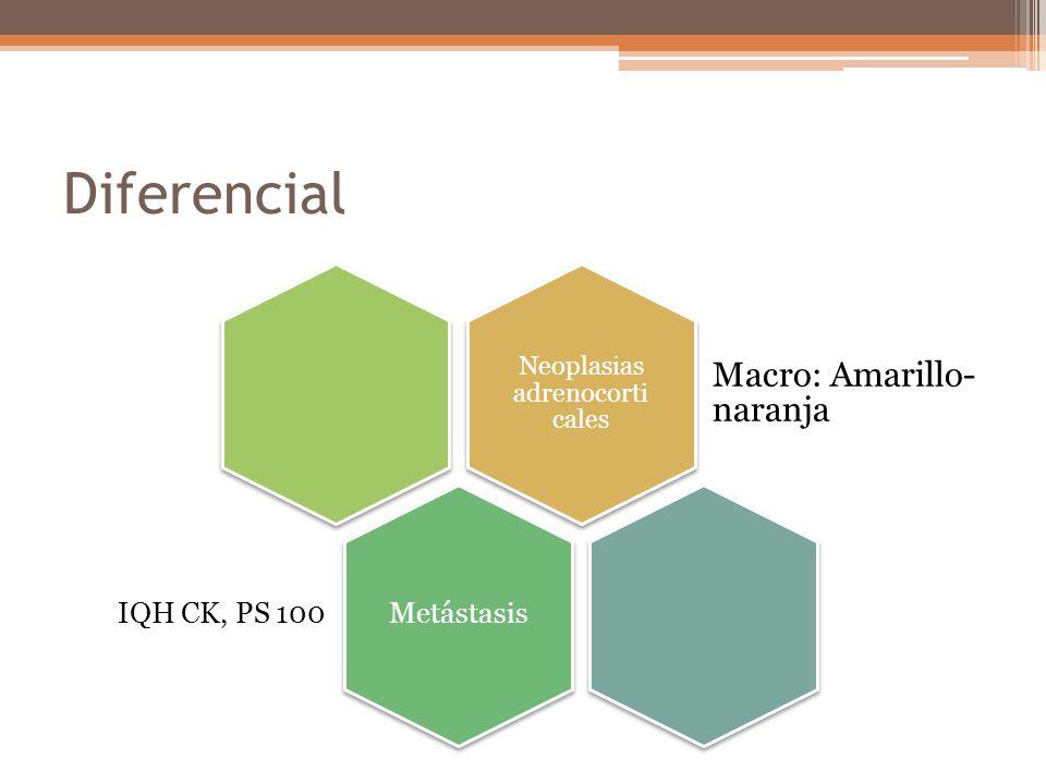 Neoplasias adrenocorticales