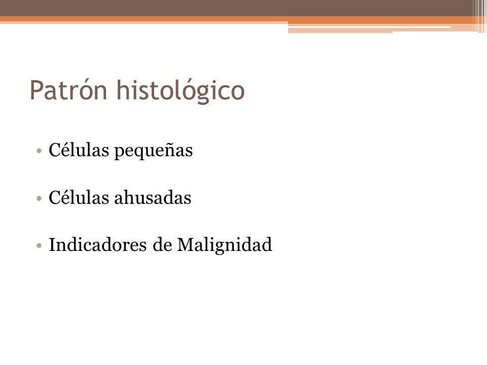 Patrón histológico Células pequeñas Células ahusadas