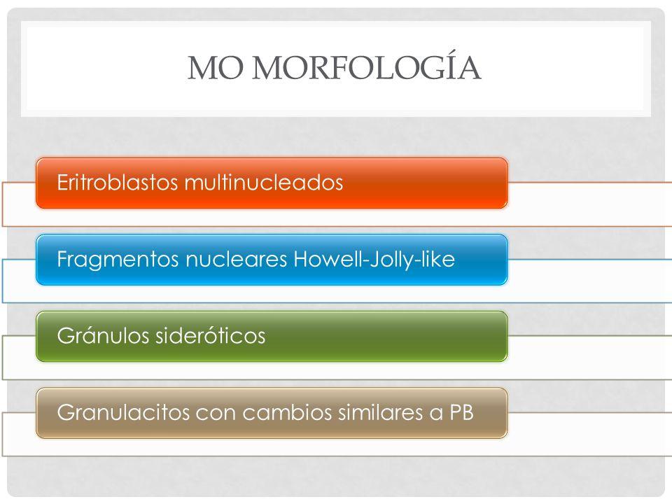 MO Morfología Eritroblastos multinucleados