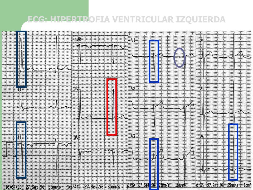 ECG: HIPERTROFIA VENTRICULAR IZQUIERDA
