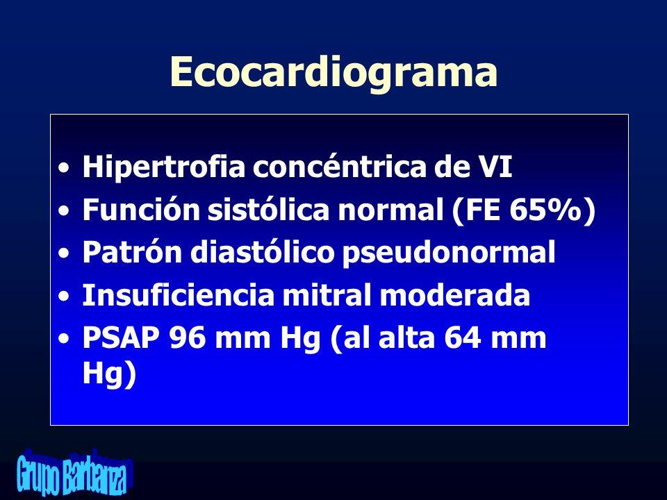Ecocardiograma Hipertrofia concéntrica de VI