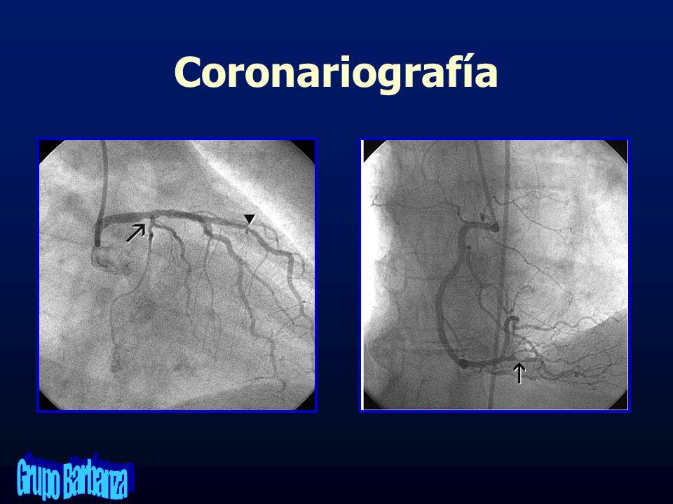 Coronariografía