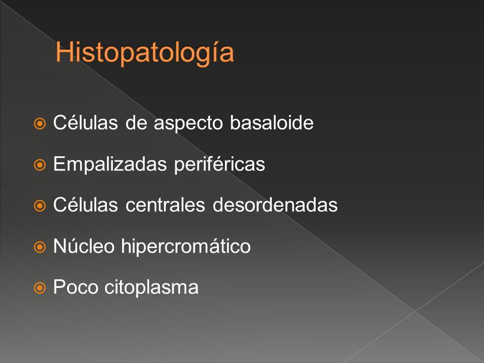 Histopatología Células de aspecto basaloide Empalizadas periféricas