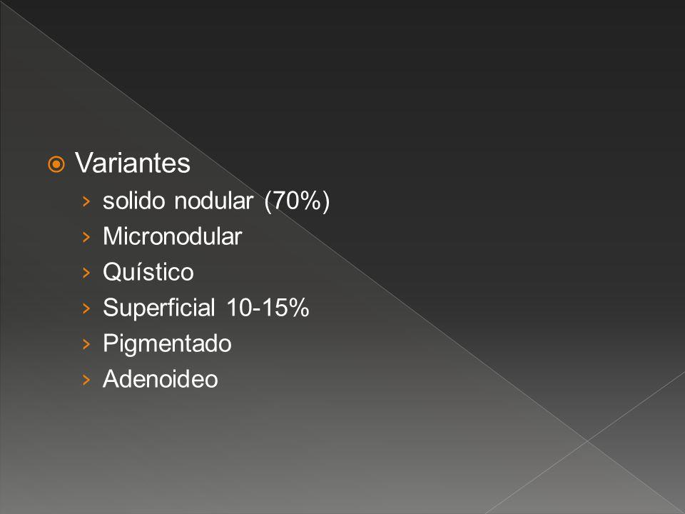 Variantes solido nodular (70%) Micronodular Quístico