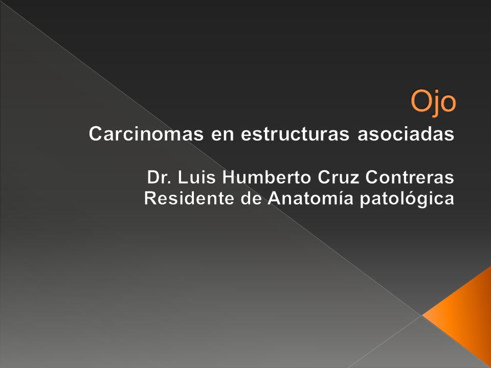 Ojo Carcinomas en estructuras asociadas