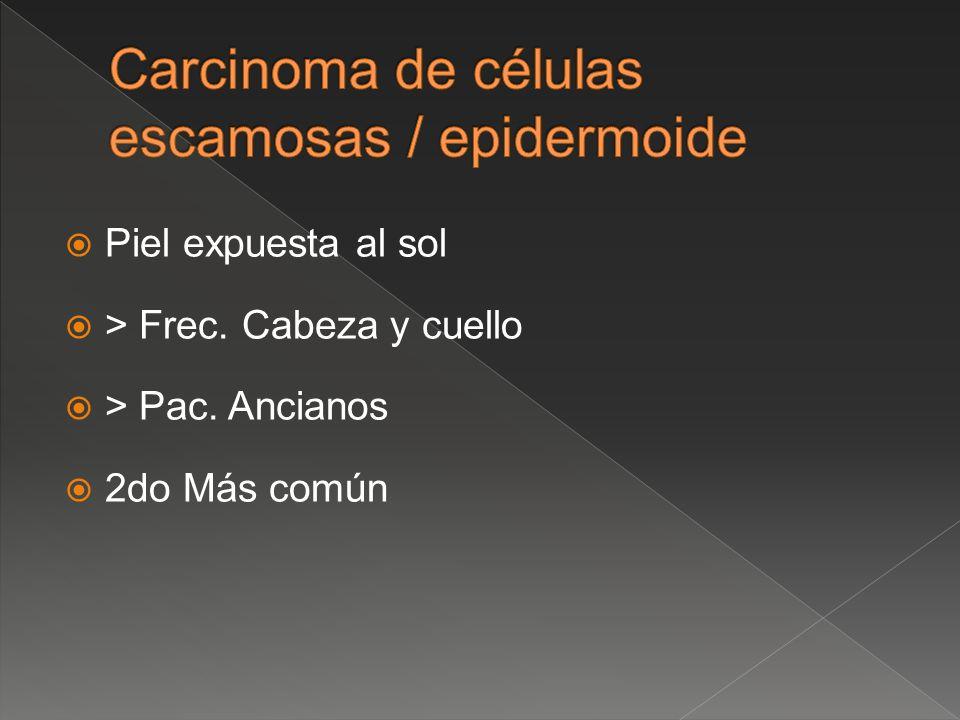 Carcinoma de células escamosas / epidermoide