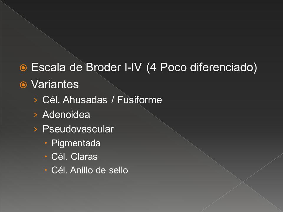 Escala de Broder I-IV (4 Poco diferenciado) Variantes