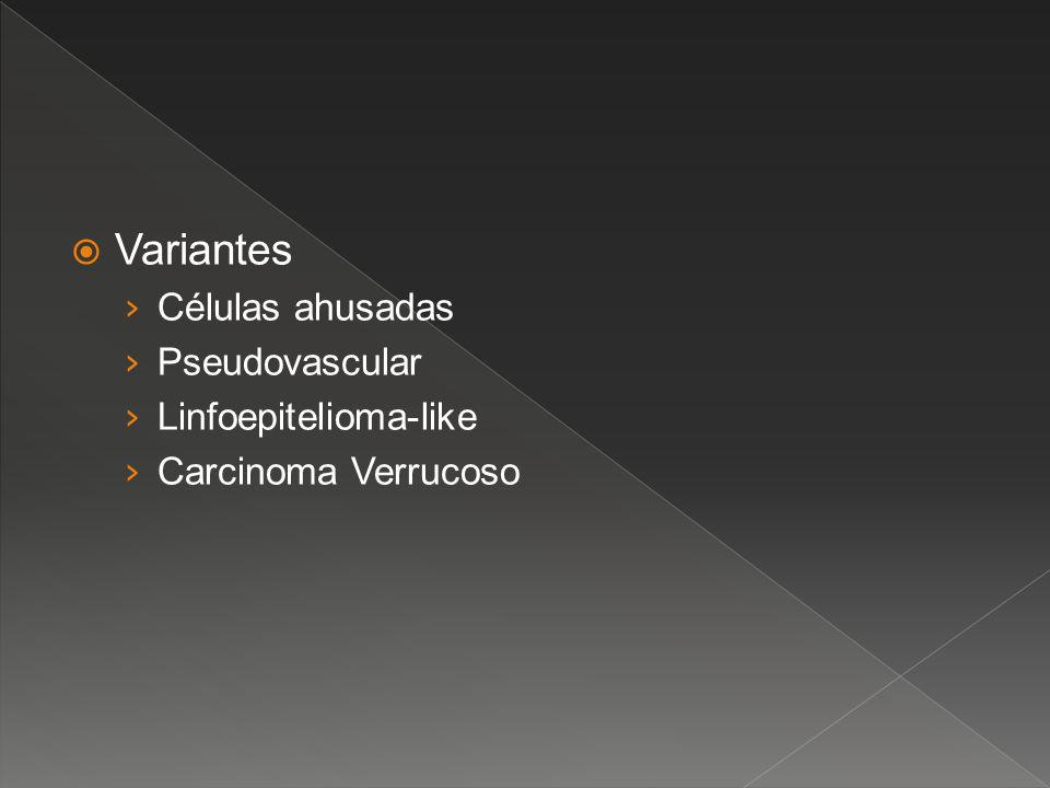 Variantes Células ahusadas Pseudovascular Linfoepitelioma-like
