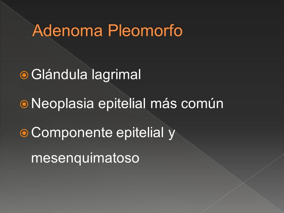 Adenoma Pleomorfo Glándula lagrimal Neoplasia epitelial más común