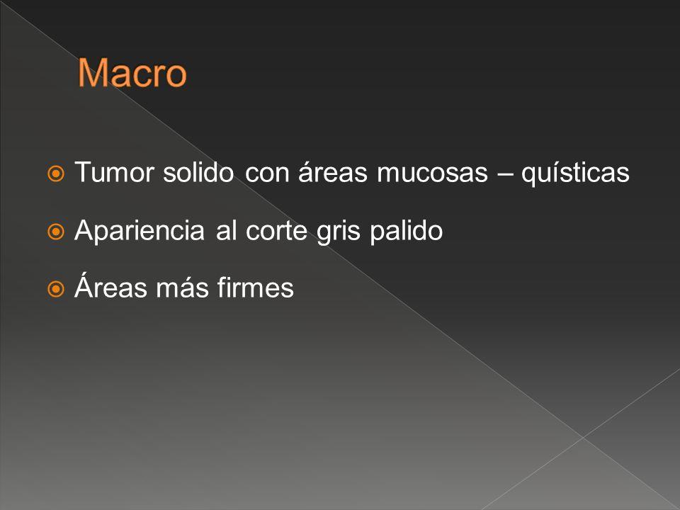 Macro Tumor solido con áreas mucosas – quísticas