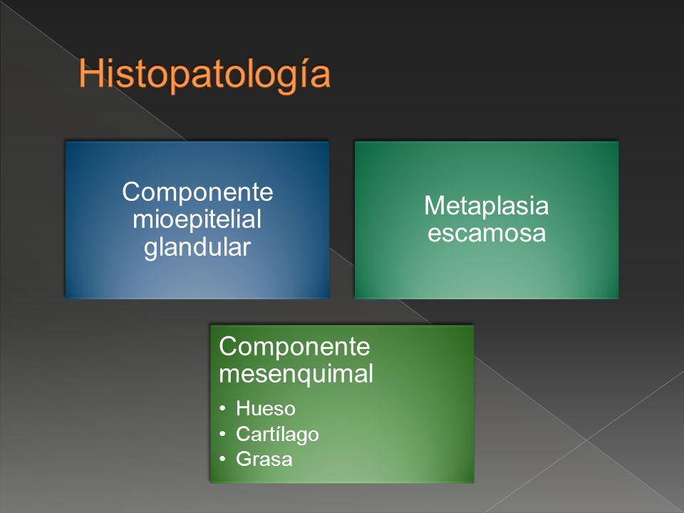 Componente mioepitelial glandular