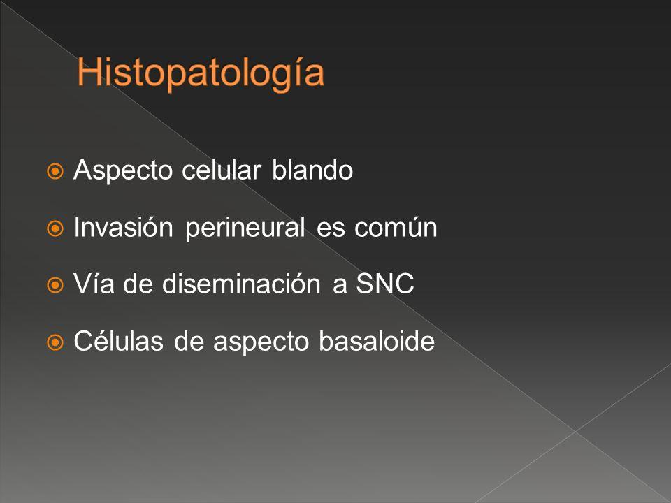 Histopatología Aspecto celular blando Invasión perineural es común