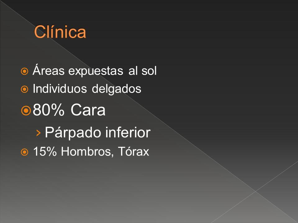 Clínica 80% Cara Párpado inferior Áreas expuestas al sol