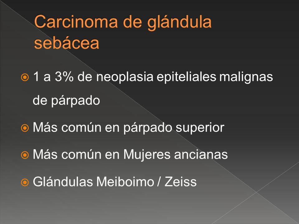 Carcinoma de glándula sebácea