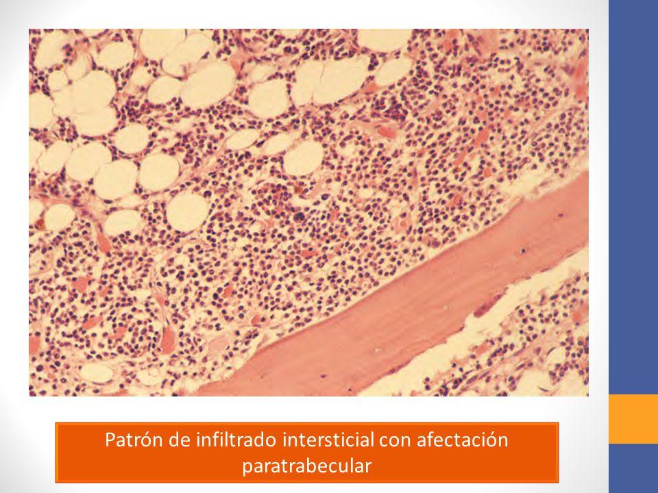 Patrón de infiltrado intersticial con afectación paratrabecular