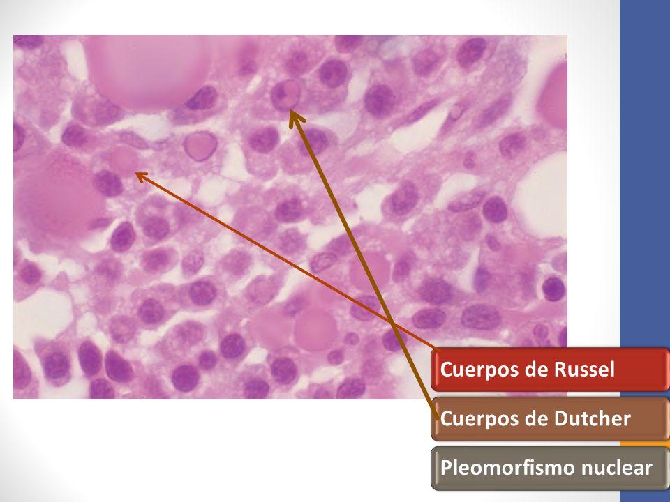 Cuerpos de Russel Cuerpos de Dutcher Pleomorfismo nuclear