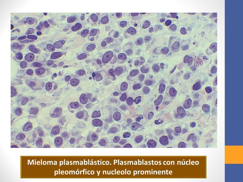Mieloma plasmablástico