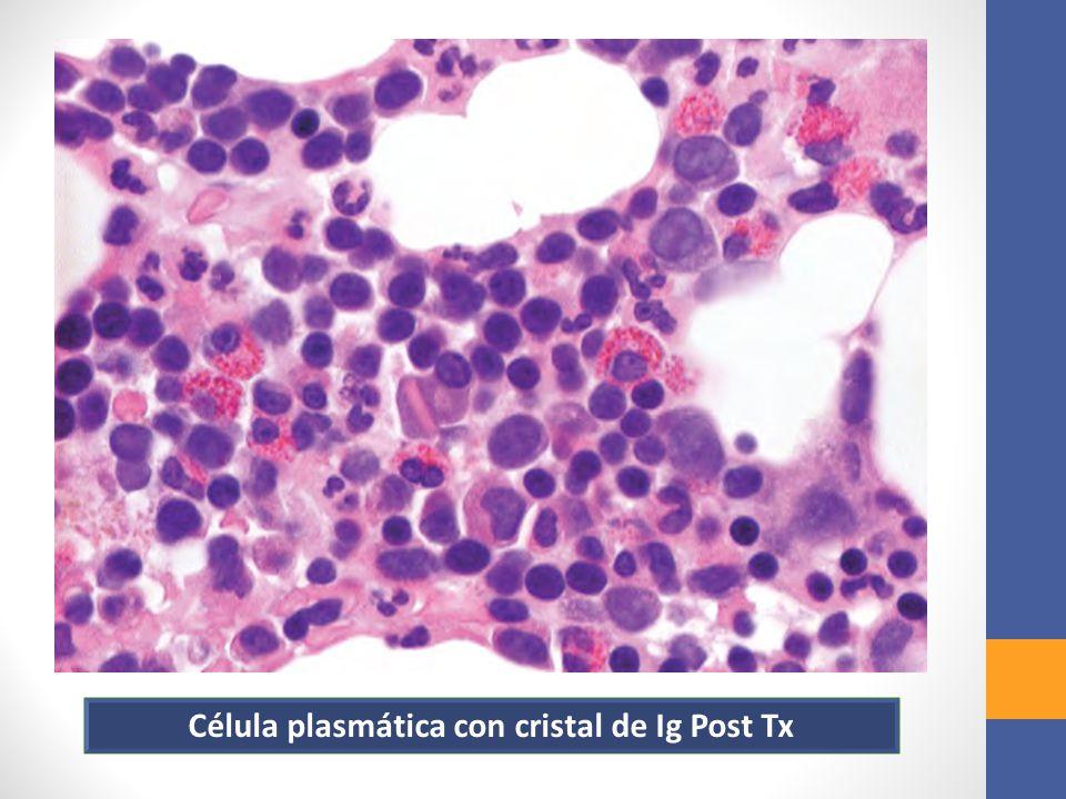 Célula plasmática con cristal de Ig Post Tx