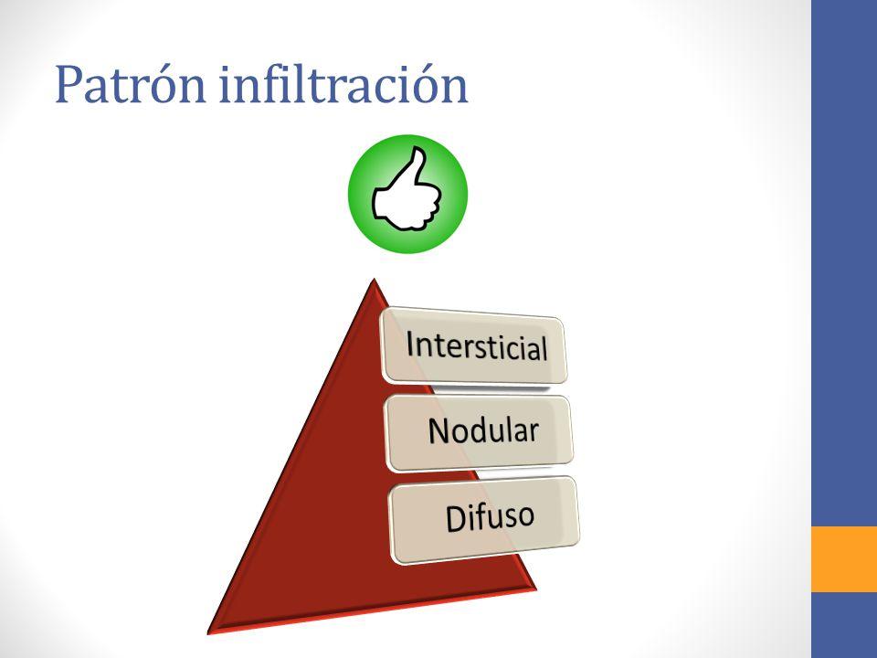 Patrón infiltración Intersticial Nodular Difuso
