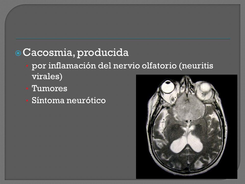 Cacosmia, producida por inflamación del nervio olfatorio (neuritis virales) Tumores.