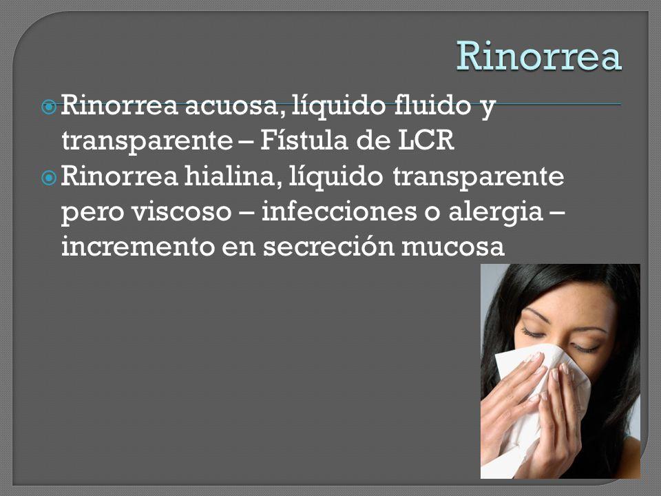 Rinorrea Rinorrea acuosa, líquido fluido y transparente – Fístula de LCR.