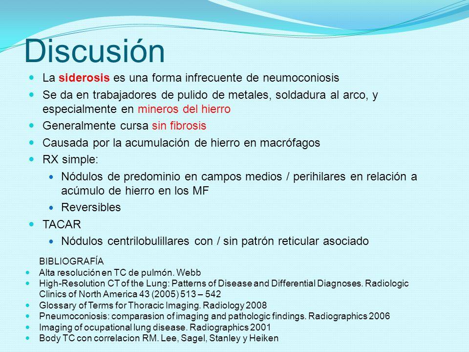 Discusión La siderosis es una forma infrecuente de neumoconiosis