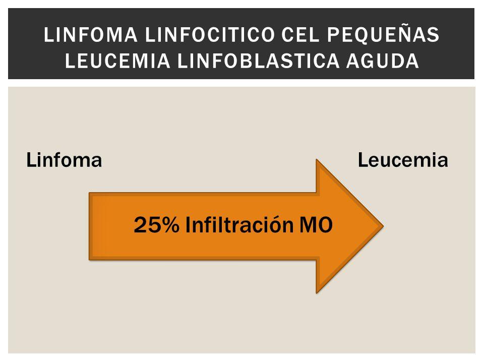 Linfoma linfocitico cel pequeñas Leucemia linfoblastica aguda