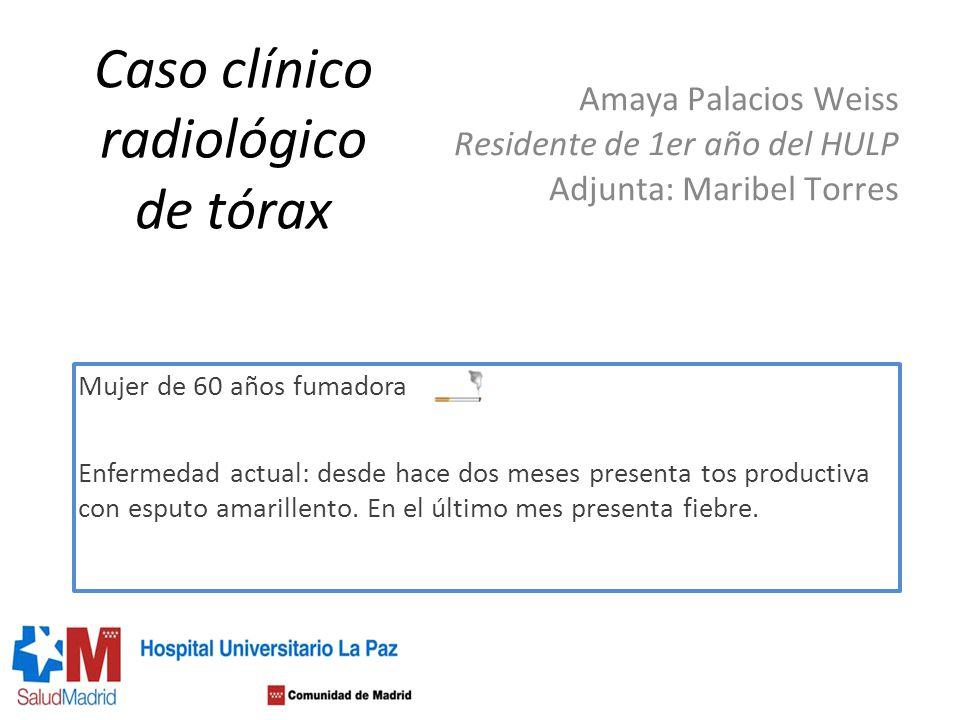 Caso clínico radiológico de tórax