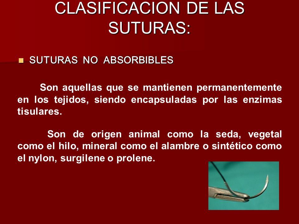 CLASIFICACION DE LAS SUTURAS: