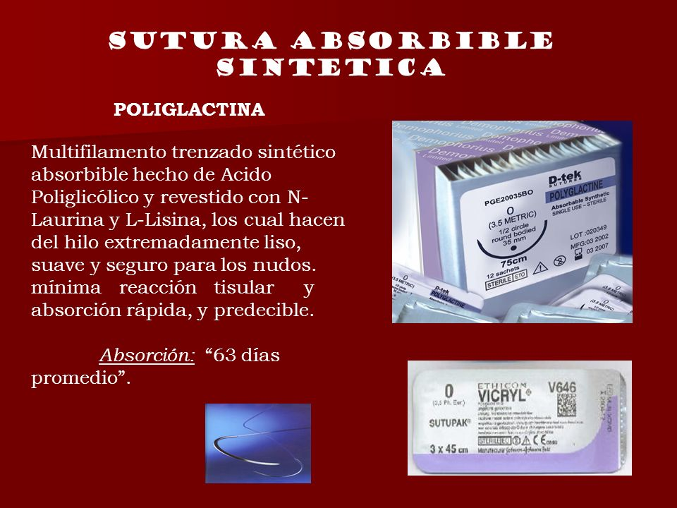 Sutura absorbible sintetica