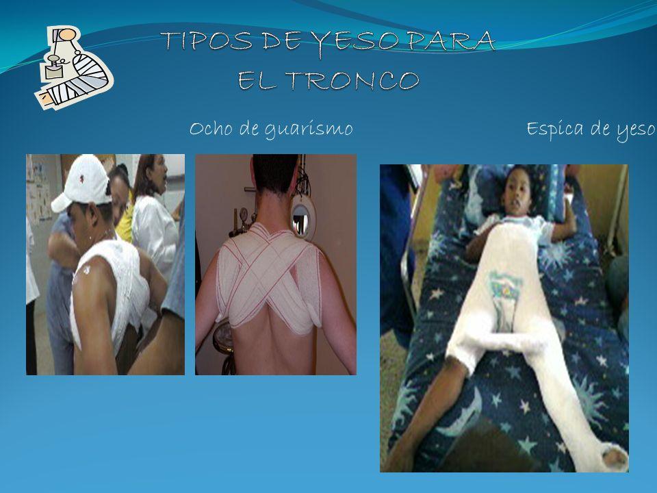 TIPOS DE YESO PARA EL TRONCO