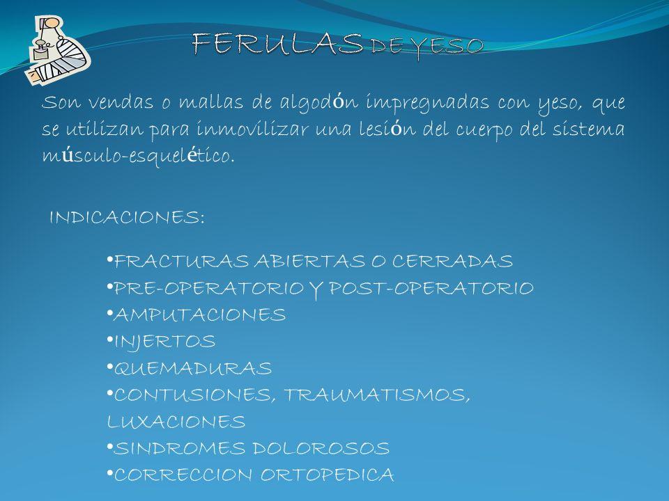 FERULAS DE YESO