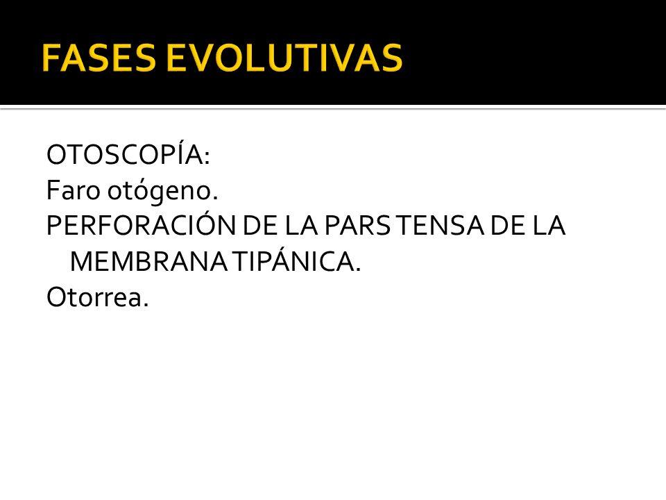 FASES EVOLUTIVAS OTOSCOPÍA: Faro otógeno. PERFORACIÓN DE LA PARS TENSA DE LA MEMBRANA TIPÁNICA.