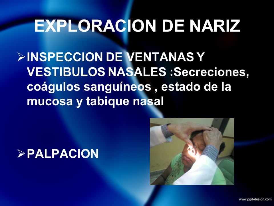 EXPLORACION DE NARIZINSPECCION DE VENTANAS Y VESTIBULOS NASALES :Secreciones, coágulos sanguíneos , estado de la mucosa y tabique nasal.