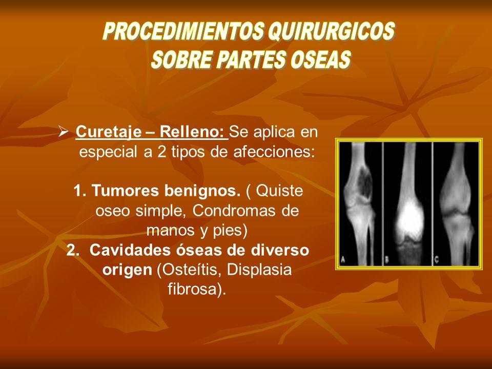 PROCEDIMIENTOS QUIRURGICOS SOBRE PARTES OSEAS