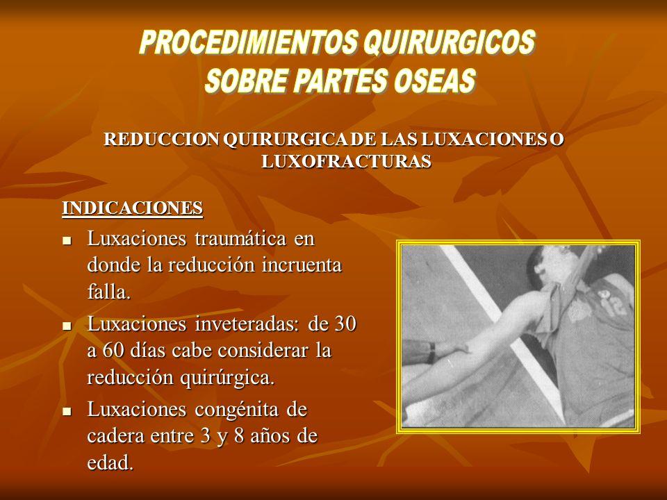 REDUCCION QUIRURGICA DE LAS LUXACIONES O LUXOFRACTURAS