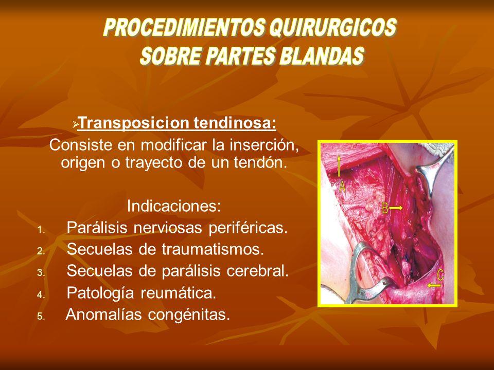 Transposicion tendinosa: