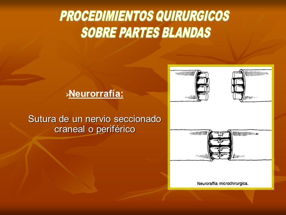 PROCEDIMIENTOS QUIRURGICOS SOBRE PARTES BLANDAS